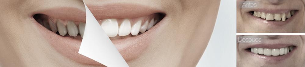 Tractament Dental de Facetes o Carilles Composite. Abans i ara.