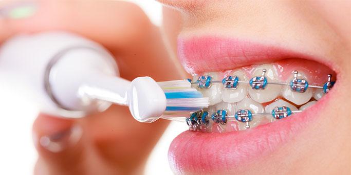 higiene-dental-amb-ortodoncia-2