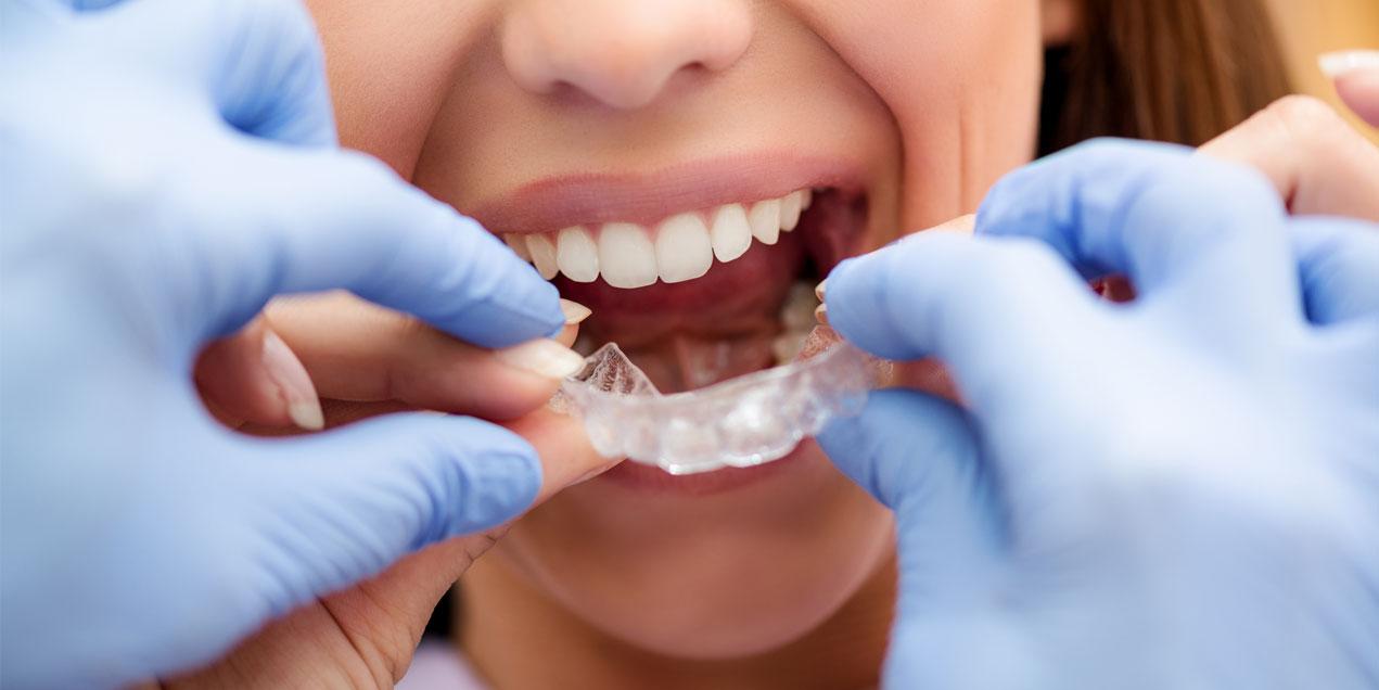 ortodoncia-invisible-vs-tradicional-dstac